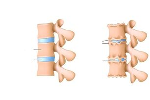 Osteochondritis of the spine
